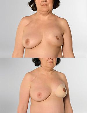 protesetilpasning hos svaneklinik