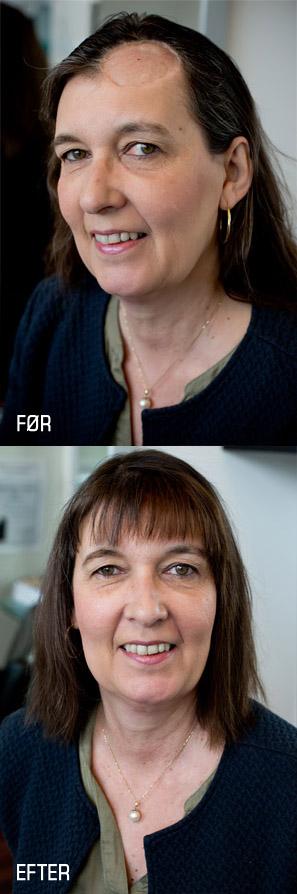 pletskaldethed - hjælp hvis håret er faldet helt eller delvist af eller opereret væk