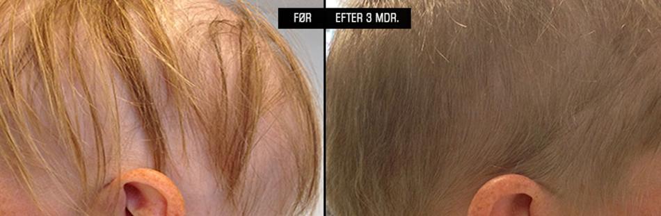 styrk din hårvækst ved hårtab efter kemo