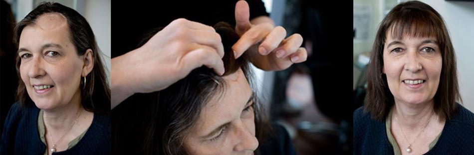hårdele hjælper dig som er pletskaldet f.eks. i forbindelse med operation i hovedbunden