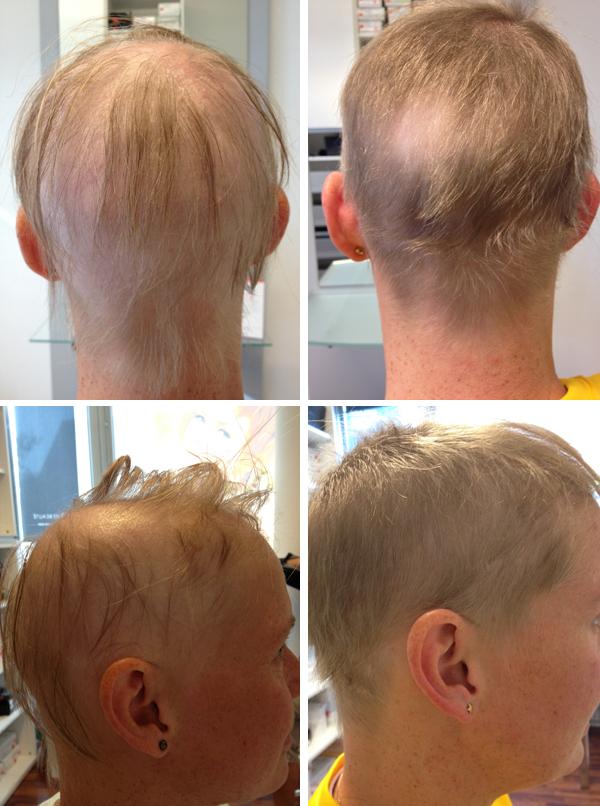 anmeldelse af hårvækstfremmer Biohar